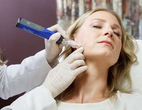 Microdermabrasion-Microneedling and More in Wichita KS-6
