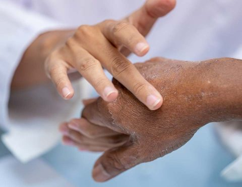 Eczema Psoriasis Treatment And More Dermatologist In Wichita KS 2